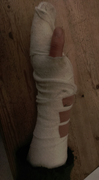 Jane's hand, stitched, splinted and bandaged